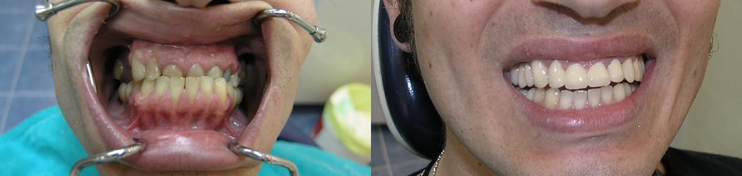 nuovo-prezzo-denti-13